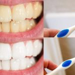 Perfect Tips To Have A Perfect Hollywood Smile